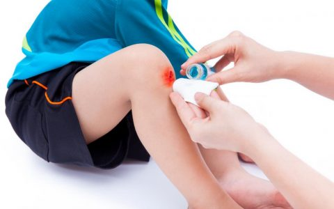在家里,实用的8种快速有效的止血方法