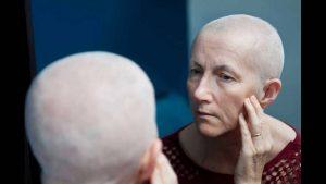 癌症化疗后的病人为什么会掉头发?